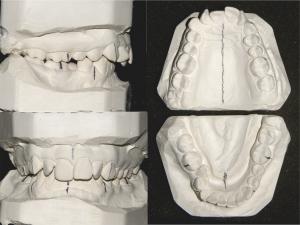 Відбитки зубних рядів