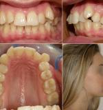Фото вихідної ситуації з зубами