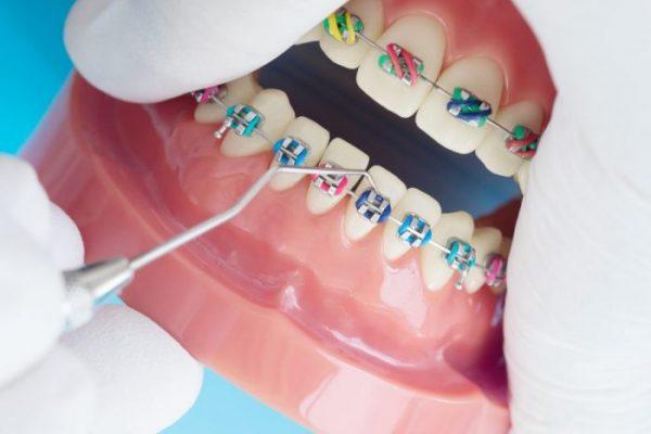 Ортодонтична модель